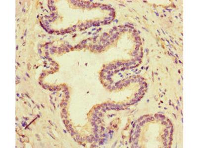 MCIDAS / MCIN Antibody