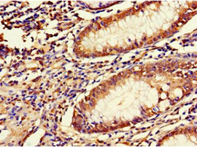 LRRIQ3 Antibody