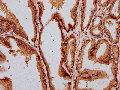 DAZAP2 Antibody