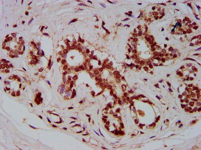 ZMIZ1 Antibody