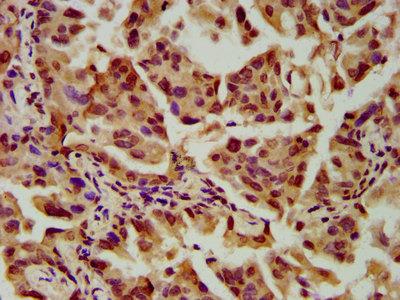 SLC2A4RG / GEF Polyclonal Antibody