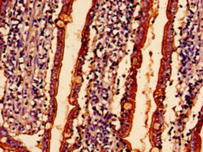 ABHD10 Antibody
