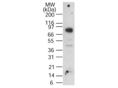 Anti-CGBP antibody