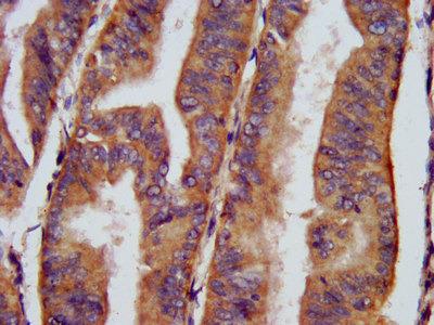 CHRNB3 Antibody