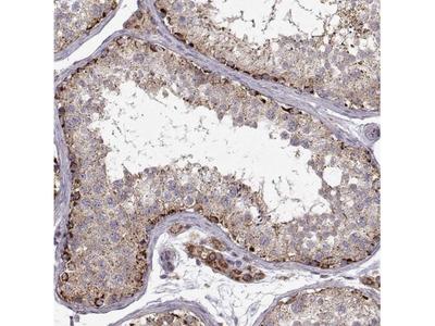 CMTM3 Antibody