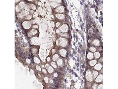 PLEKHG3 Antibody