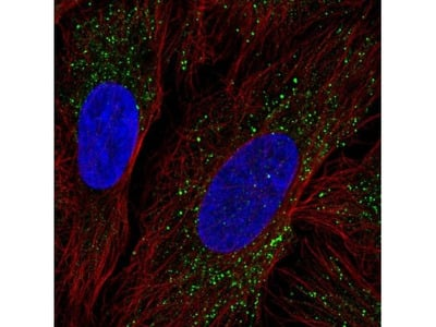 ZDHHC17 Antibody