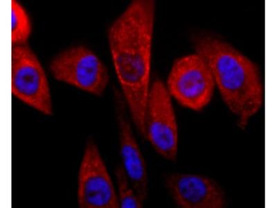 Parkin Antibody (JF82-09)