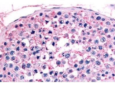 Anti-GCNF antibody