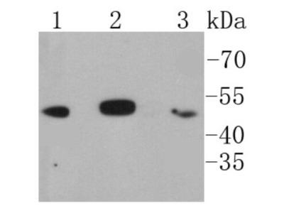 Rabbit Monoclonal IkB-beta Antibody