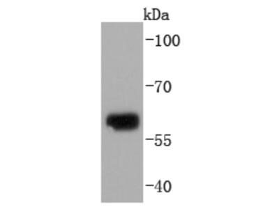 Collagen X alpha 1 Antibody (JF0961)