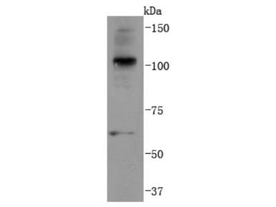 Ubiquitin B Antibody (JM09-67)
