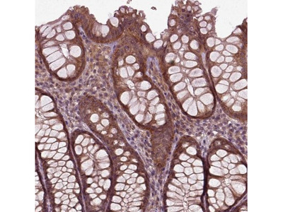 PLC-delta 3 Antibody