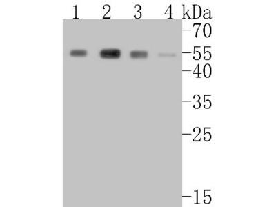 Rabbit Monoclonal beta-Arrestin 1 Antibody