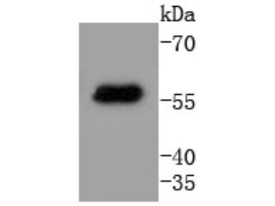 Cytokeratin 4 Antibody (SN2001)