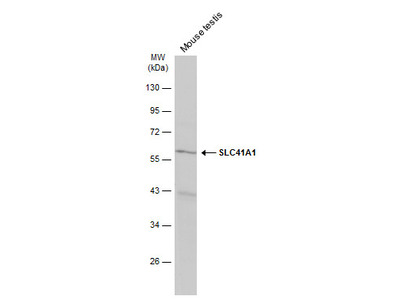 Anti-SLC41A1 antibody