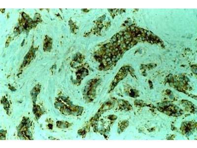 Anti-MVP/LRP antibody [1032]