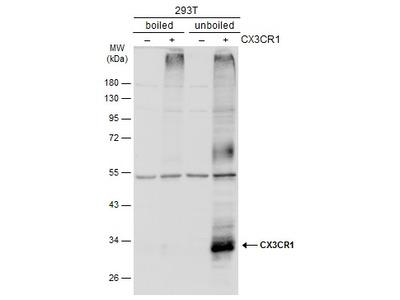 Anti-CX3CR1 antibody