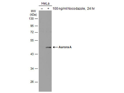 Anti-Aurora A antibody