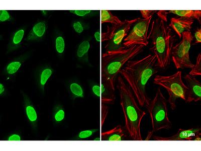 Anti-Wip1 antibody