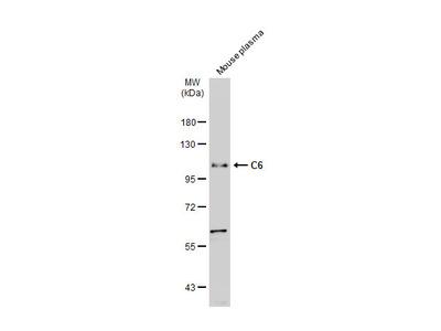 Anti-C6 antibody