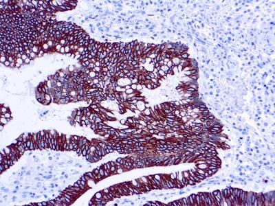 Anti-Cytokeratin 8 + 18 antibody [5D3]
