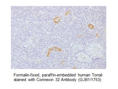 Anti-Connexin 32 Antibody (GJB1/1753)