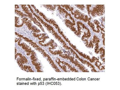 Anti-p53 Antibody (IHC053)