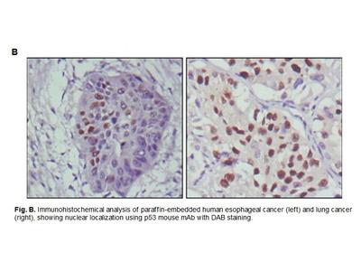 Anti-p53 Antibody (56F12-2)