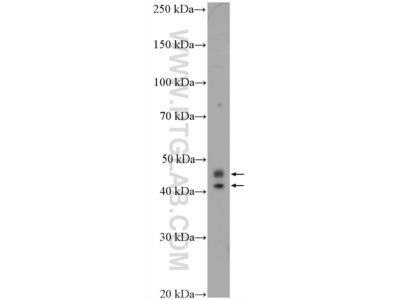CCDC109B Antibody