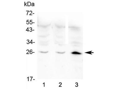 BNP Antibody / Brain Natriuretic Peptide