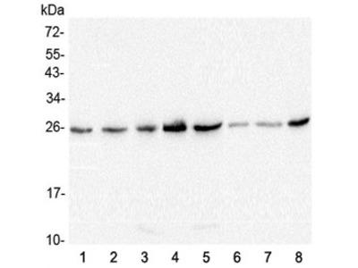 GSTM1 Antibody