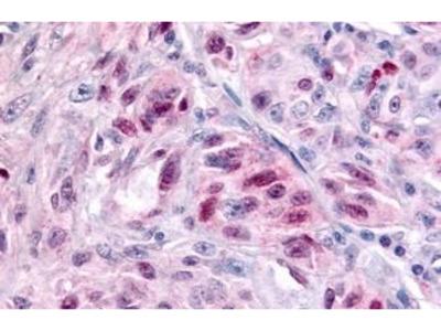 Anti-NR1D2 antibody