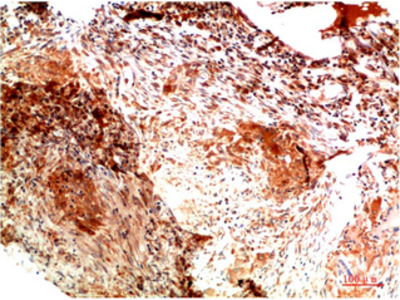 Immunotag™ Collagen II mouse Monoclonal Antibody(1H1)