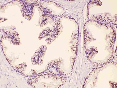 GAA Polyclonal Antibody