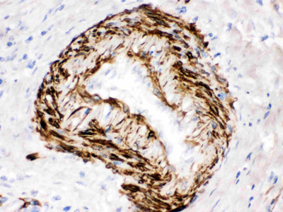 SMYD3 Polyclonal Antibody