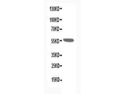 CHRNA1 Antibody