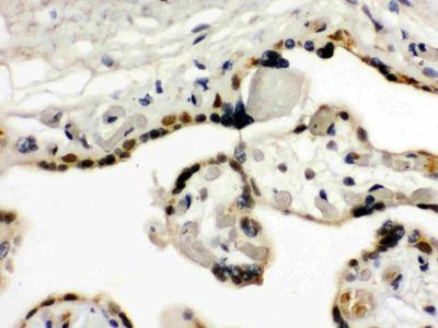 TIF1 gamma Antibody