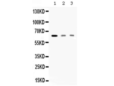 AMHR2 Polyclonal Antibody
