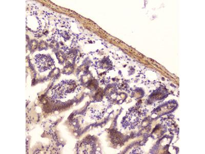 DROSHA Polyclonal Antibody