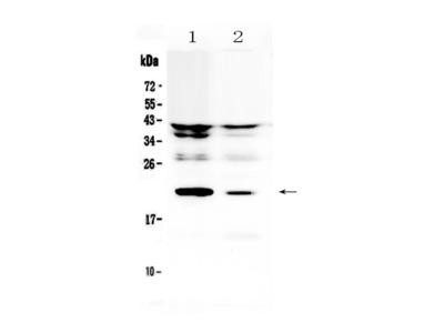 IL-11 Polyclonal Antibody