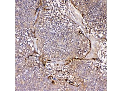 IL1F10 Polyclonal Antibody