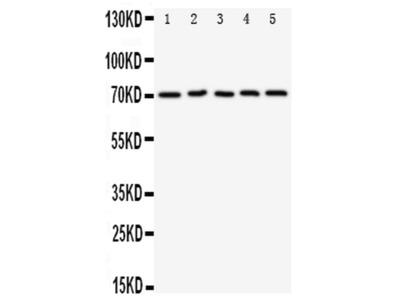 PD-L1 (CD274) Polyclonal Antibody