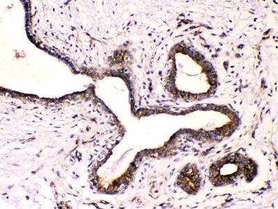 Beta III Tubulin Polyclonal Antibody
