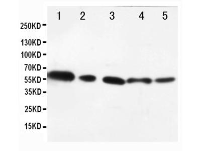 AKT1/AKT2 Polyclonal Antibody