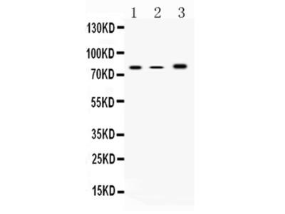 ALOX12 Polyclonal Antibody