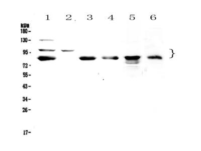 TPX2 Polyclonal Antibody