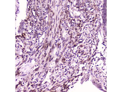 IL1F6 Polyclonal Antibody