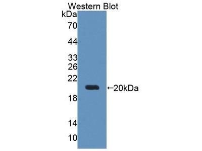 Rabbit Anti-Deoxythymidylate Kinase, NT Antibody