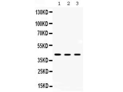 Rabbit Anti-AMACR Antibody